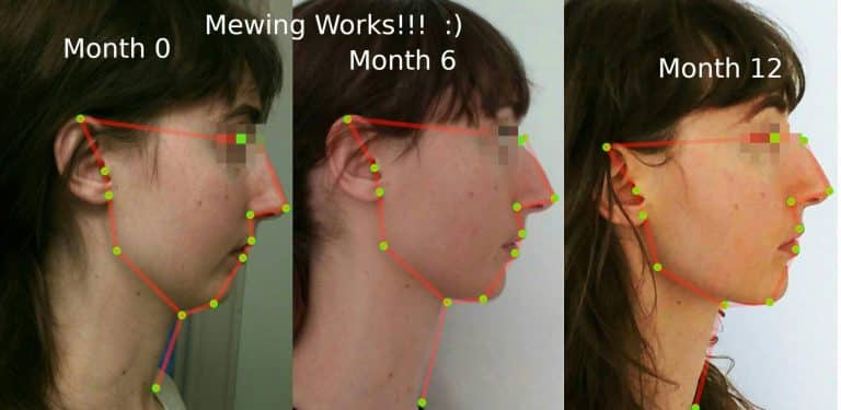 how to get a chiseled jaw