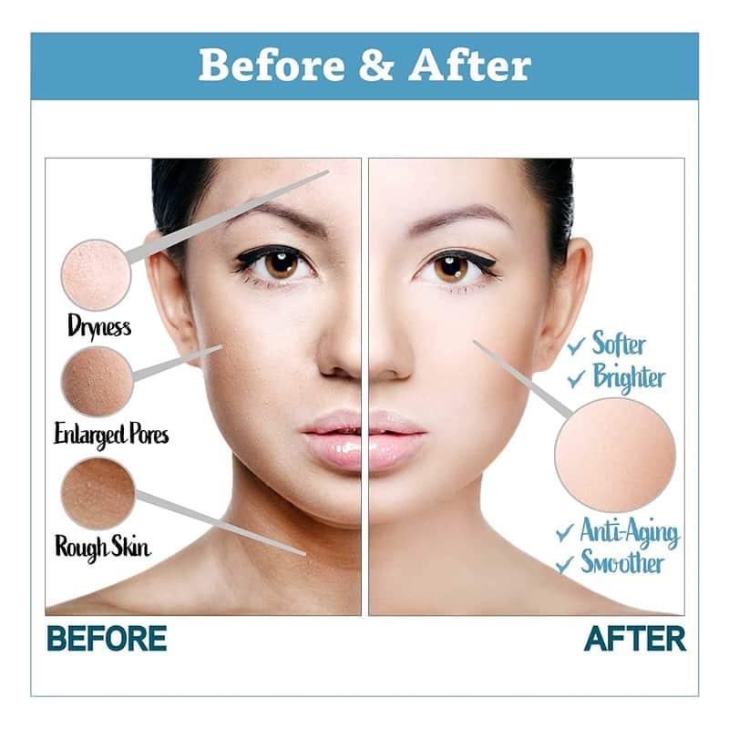 best exfoliators for mature skin